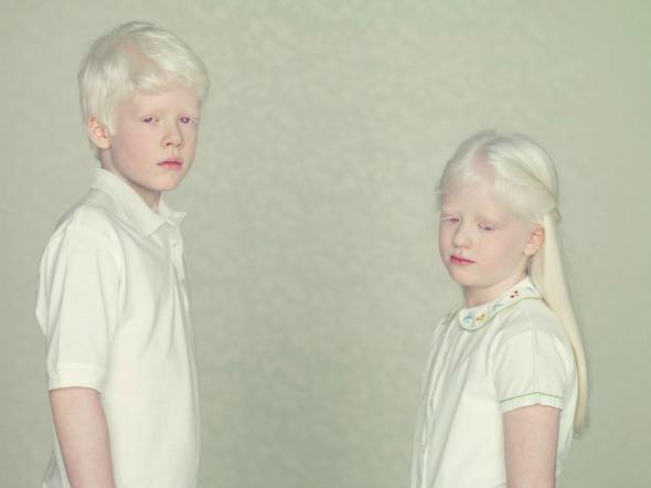 Gustavo Lacerda's Albino series
